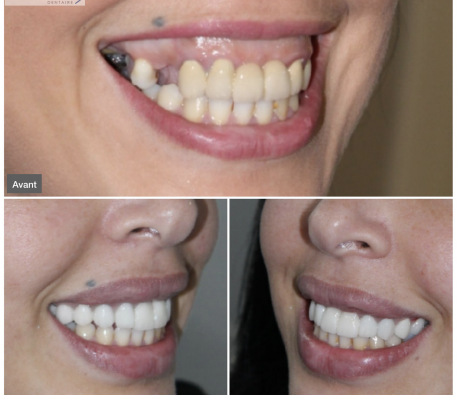 benbrahim - sourire_gingival_dr_hicham_benbrahim-1.458x0-is.png